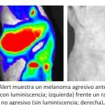 Investigadores del CNIO logran visualizar las metástasis del melanoma antes de que ocurran e identifican nuevas dianas para su tratamiento