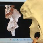Traumatólogos del Hospital Virgen del Rocío imprimen en 3D réplicas exactas de los huesos de pacientes con fracturas
