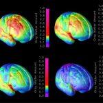 Vivir cerca de áreas verdes mejora el desarrollo cerebral