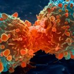 Venciendo la lucha contra el cáncer