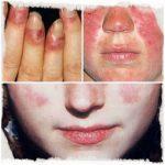 España, tercer país europeo por su participación en estudios sobre la enfermedad del lupus