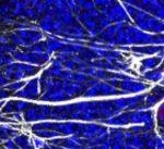 Descubren cómo reducir la pérdida de células madre relacionada con el envejecimiento en el cerebro de ratones