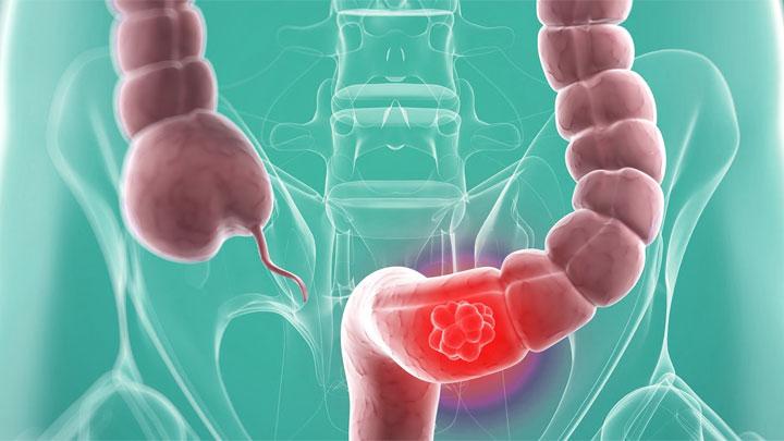 El coste de los tratamientos del cáncer colorrectal metastásico por cada mes de vida ganado, una preocupación para los oncólogos españoles