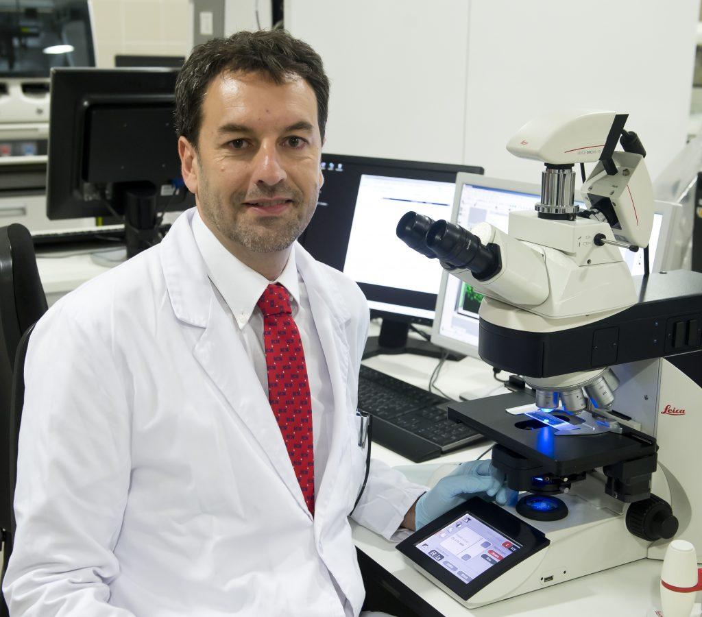 Logran identificar alteraciones genéticas en tumores cerebrales de difícil acceso o inoperables en niños con un simple análisis de sangre