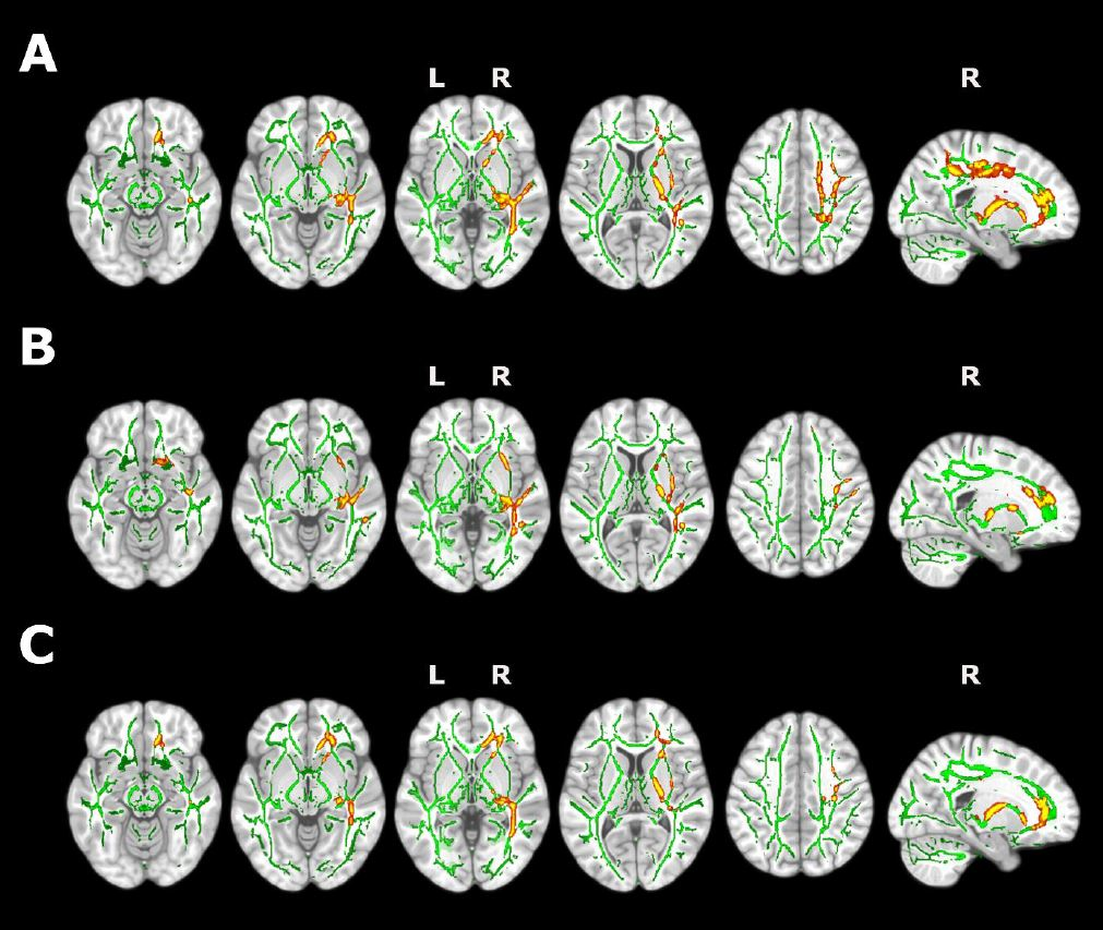 Insomio y Alzheimer. Encuentran cambios en la estructura cerebral y la cognición en personas con insomnio