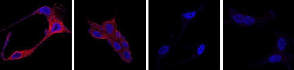 Un nuevo tratamiento para el cáncer de próstata usa nanopartículas orgánicas para destruir las células tumorales