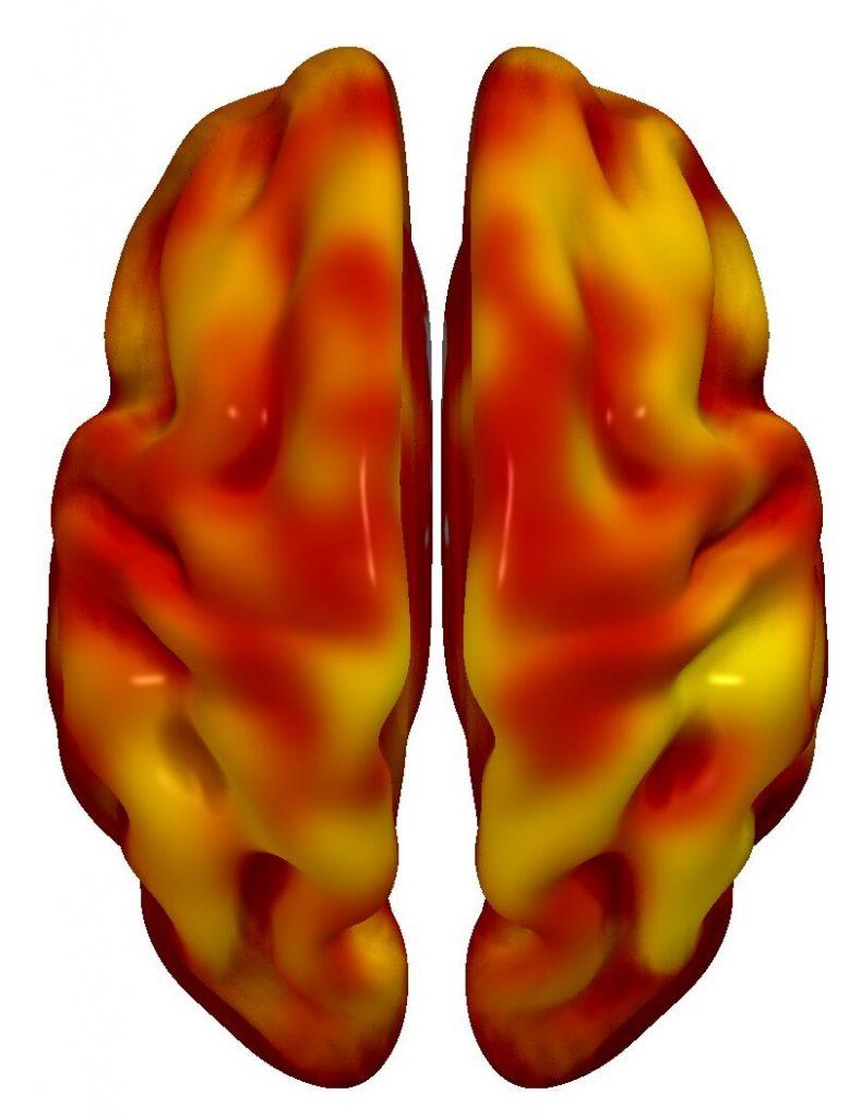 Desvelan la precoz asociación entre el riesgo cardiovascular y el metabolismo cerebral