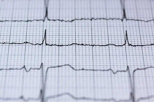 Desarrollan un nuevo modelo que predice el riesgo de muerte súbita en niños y adolescentes con miocardiopatía hipertrófica