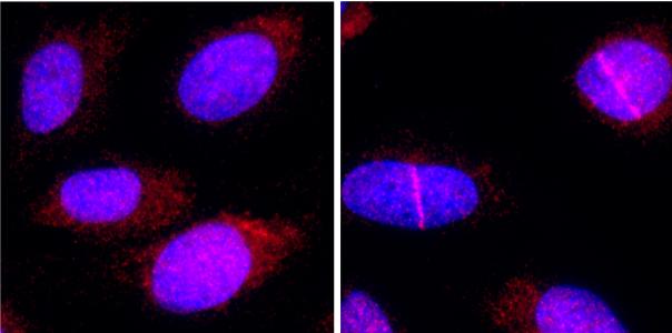 Investigadores descubren que una proteína que facilita la reparación del ADN podría ser usada para potenciar la quimioterapia